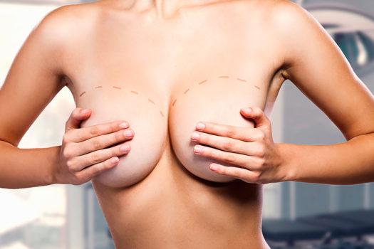 Увеличение груди реклама